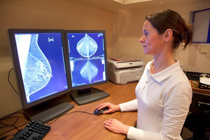 Google's Künstliche Intelligenz erkennt Brustkrebs
